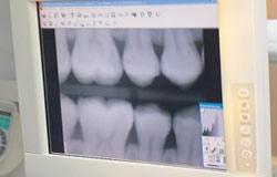 Wurzelkanalbehandlung beim Dentologicum Hamburg