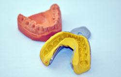 Gebissabdruck bei der Zahnarztbehandlung