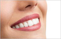 Zahnaufhellung im Dentologicum Hamburg - für strahlend weiße Zähne