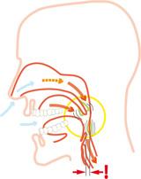 Was tun gegen Schnarchen - Schnarchschiene Silensor - vom Zahnarzt im Dentologicum