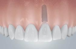 Einzelne Zähne können durch Zahn-Implantate ersetzt werden