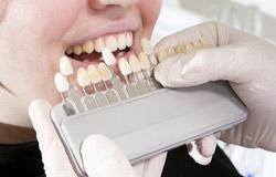 Zahnersatz wird bei uns sorgfältig farblich an Ihre Bedürfnisse angepasst