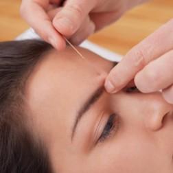 ganzheitliche Zahnarzt-Behandlungsmethoden, z.B. Akupunktur
