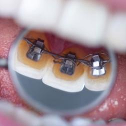 Unsichtbare Zahnspangen aus Hamburg