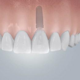 Zahnersatz und Zahn-Implantate aus unserem Hamburger Dentallabor