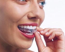 Die Zahnspange von Invisalign ist nahezu unsichtbar