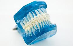 Modell von einem Gebiss mit unsichtbarer Zahnspange