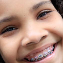 Zahnspangen für Kinder vom MVZ Dentologicum Hamburg