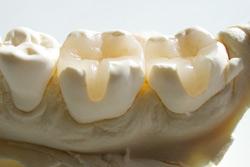 Keramik Inlays vom MVZ Dentologicum Hamburg